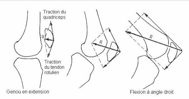 manque cartilage genoux